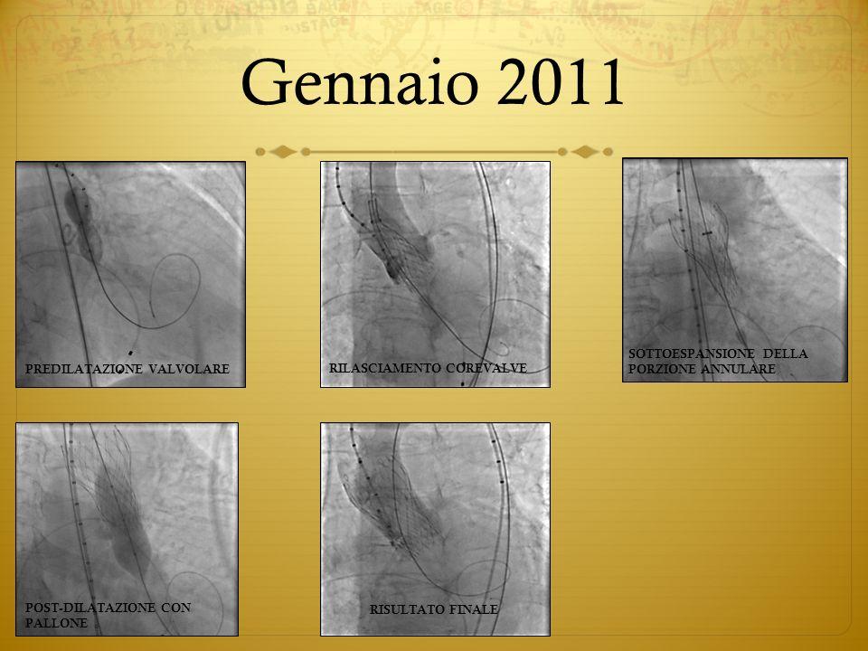 Gennaio 2011 SOTTOESPANSIONE DELLA PORZIONE ANNULARE