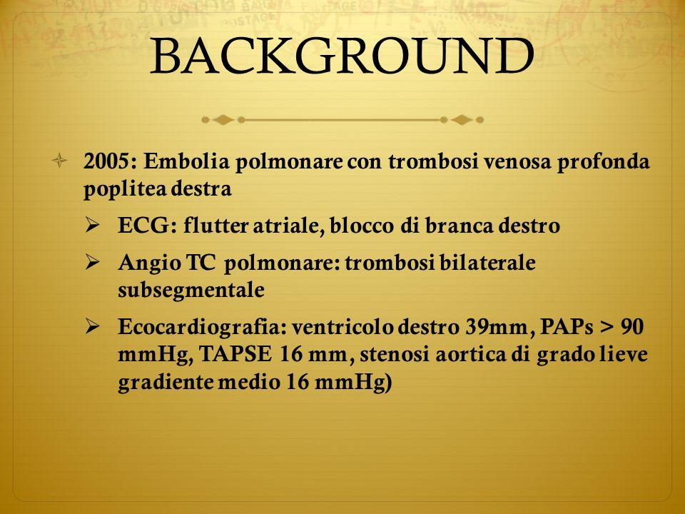 BACKGROUND 2005: Embolia polmonare con trombosi venosa profonda poplitea destra. ECG: flutter atriale, blocco di branca destro.