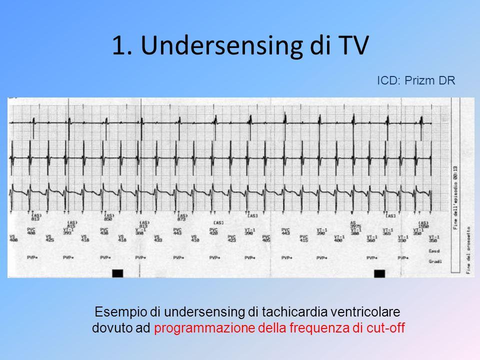 1. Undersensing di TV ICD: Prizm DR. Esempio di undersensing di tachicardia ventricolare.