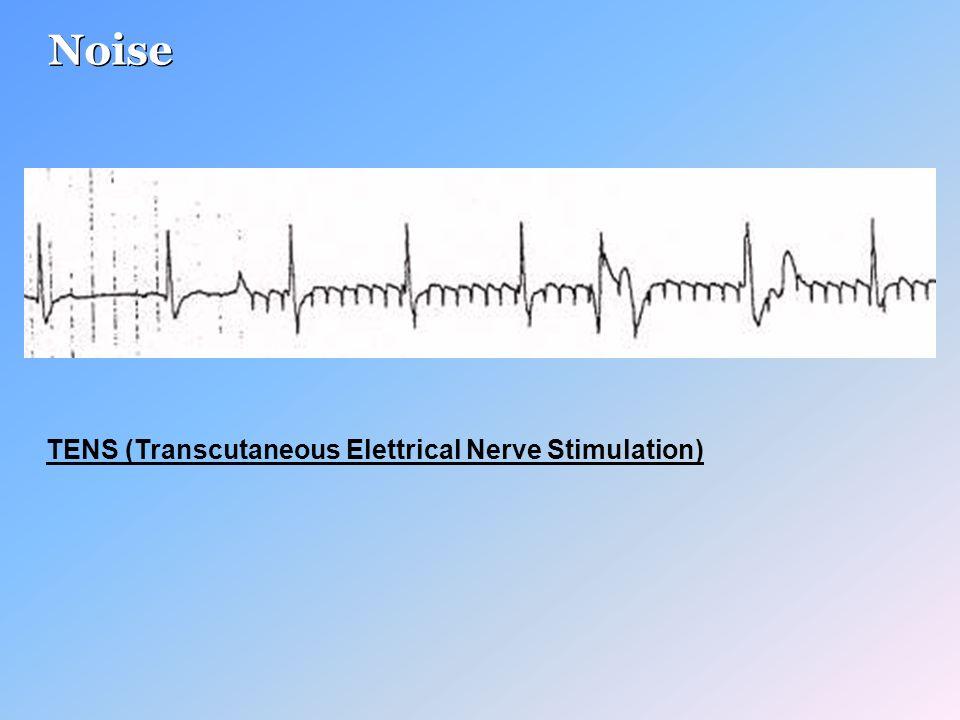 Noise TENS (Transcutaneous Elettrical Nerve Stimulation)