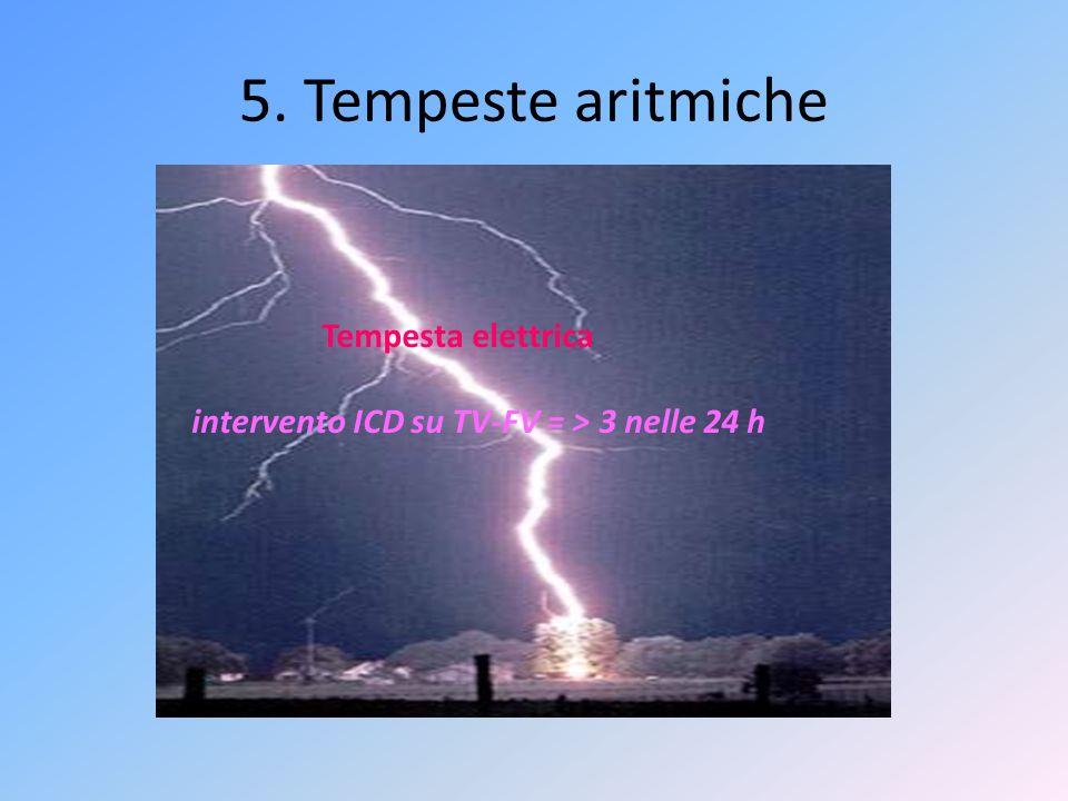 5. Tempeste aritmiche Tempesta elettrica