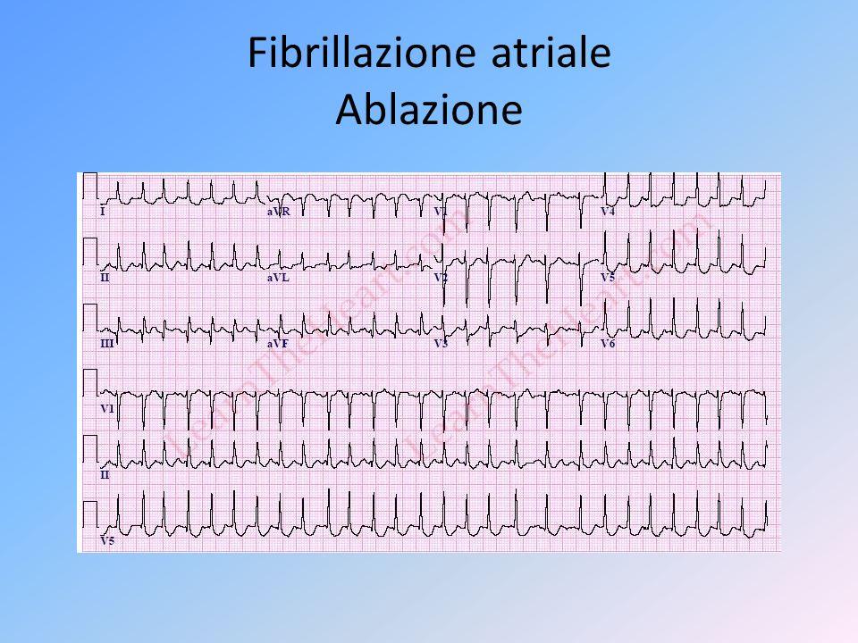 Fibrillazione atriale Ablazione
