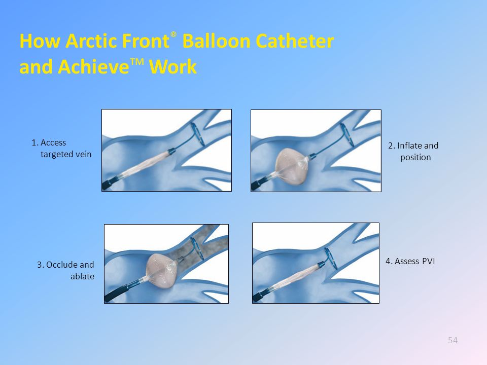How Arctic Front® Balloon Catheter and AchieveTM Work