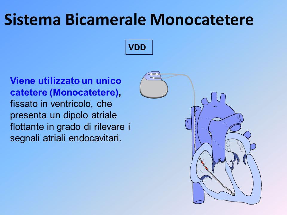 Sistema Bicamerale Monocatetere
