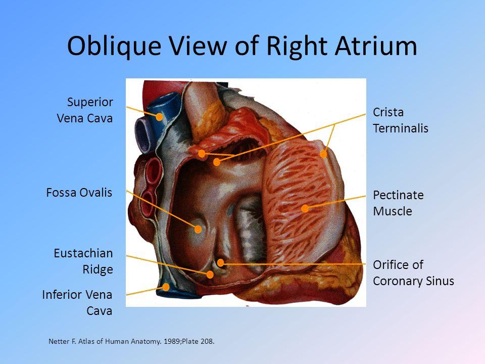 Oblique View of Right Atrium