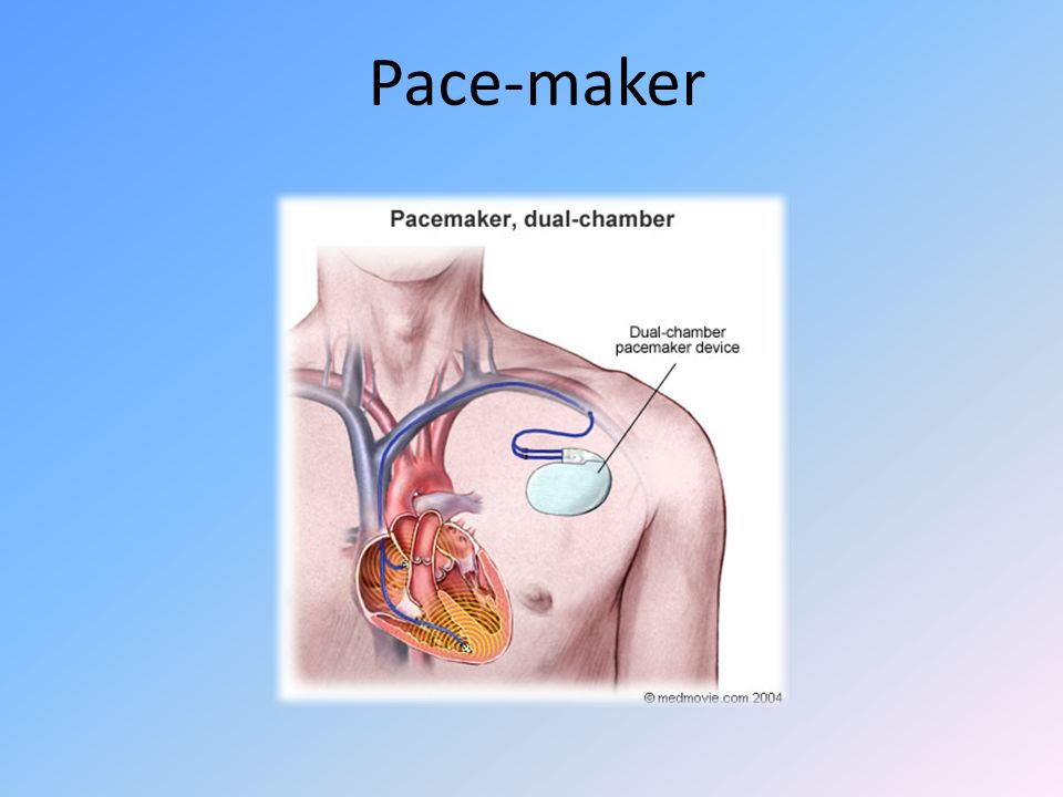 Pace-maker