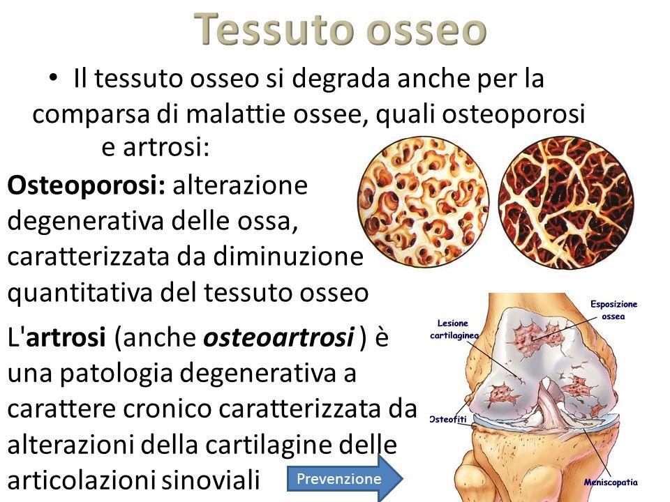 Tessuto osseo Il tessuto osseo si degrada anche per la comparsa di malattie ossee, quali osteoporosi.