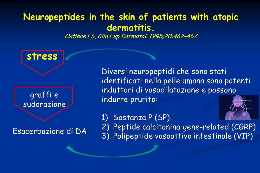 Neuropeptides in the skin of patients with atopic dermatitis.
