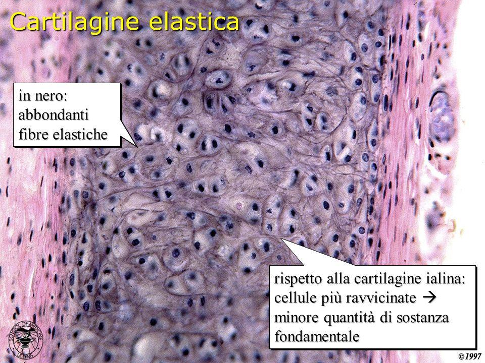 Cartilagine elastica in nero: abbondanti fibre elastiche