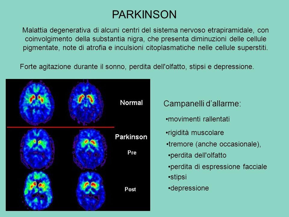 PARKINSON Campanelli d'allarme: