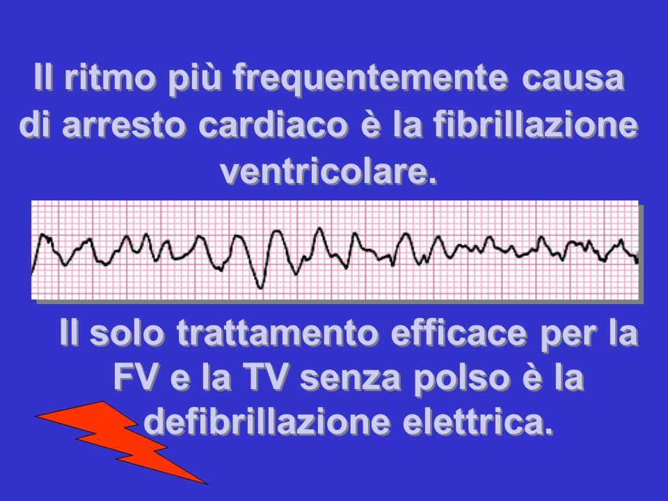 Il ritmo più frequentemente causa di arresto cardiaco è la fibrillazione ventricolare.