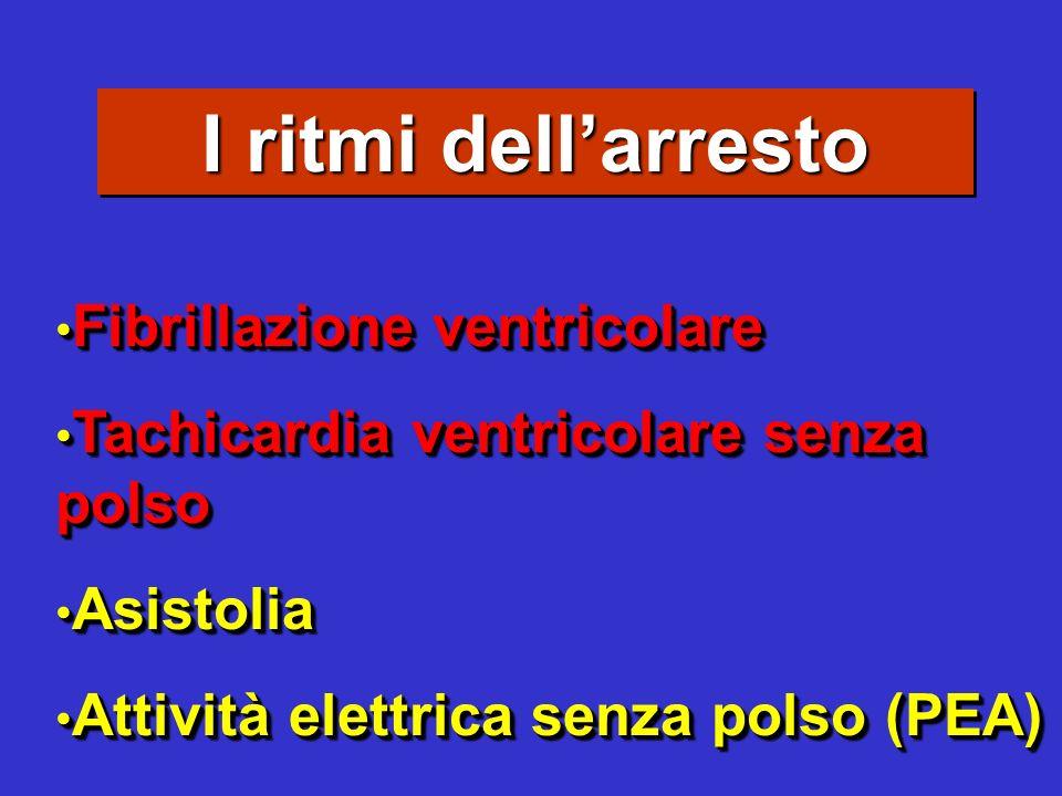 I ritmi dell'arresto Fibrillazione ventricolare