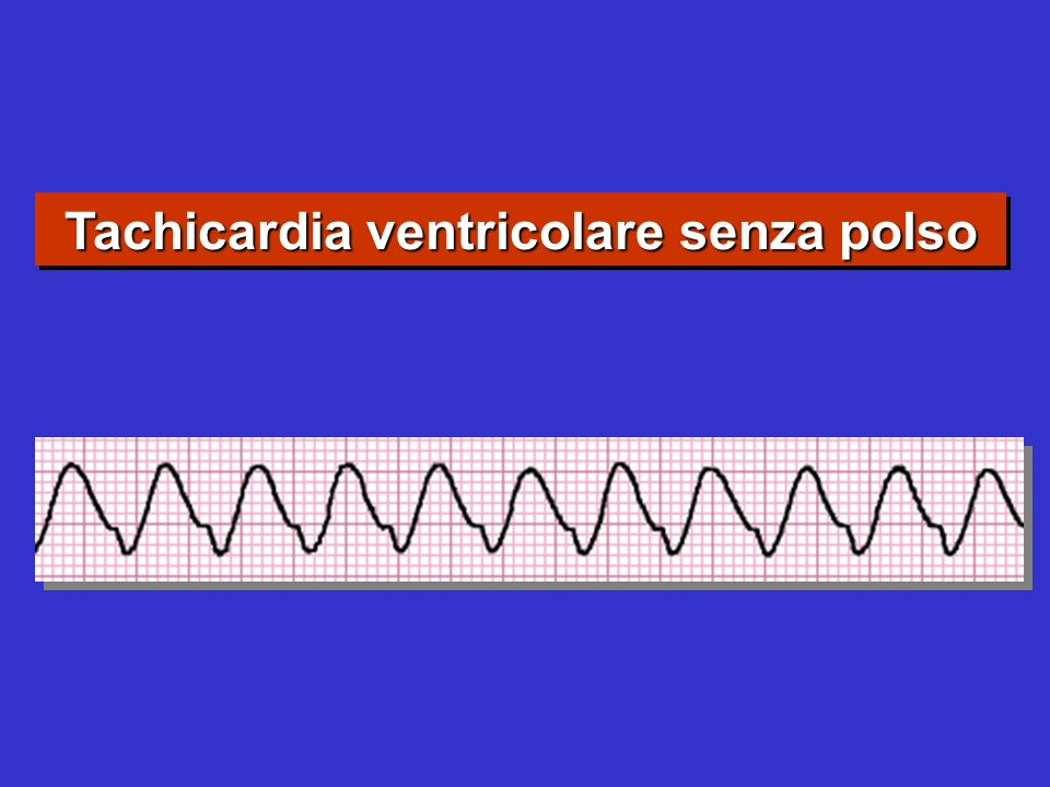 Tachicardia ventricolare senza polso