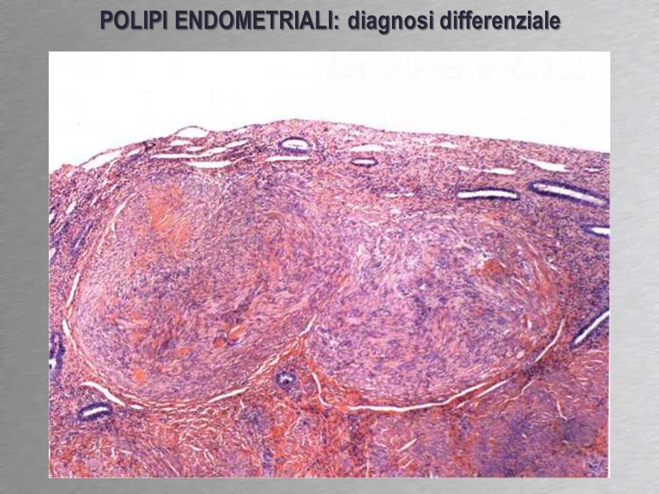 POLIPI ENDOMETRIALI: diagnosi differenziale