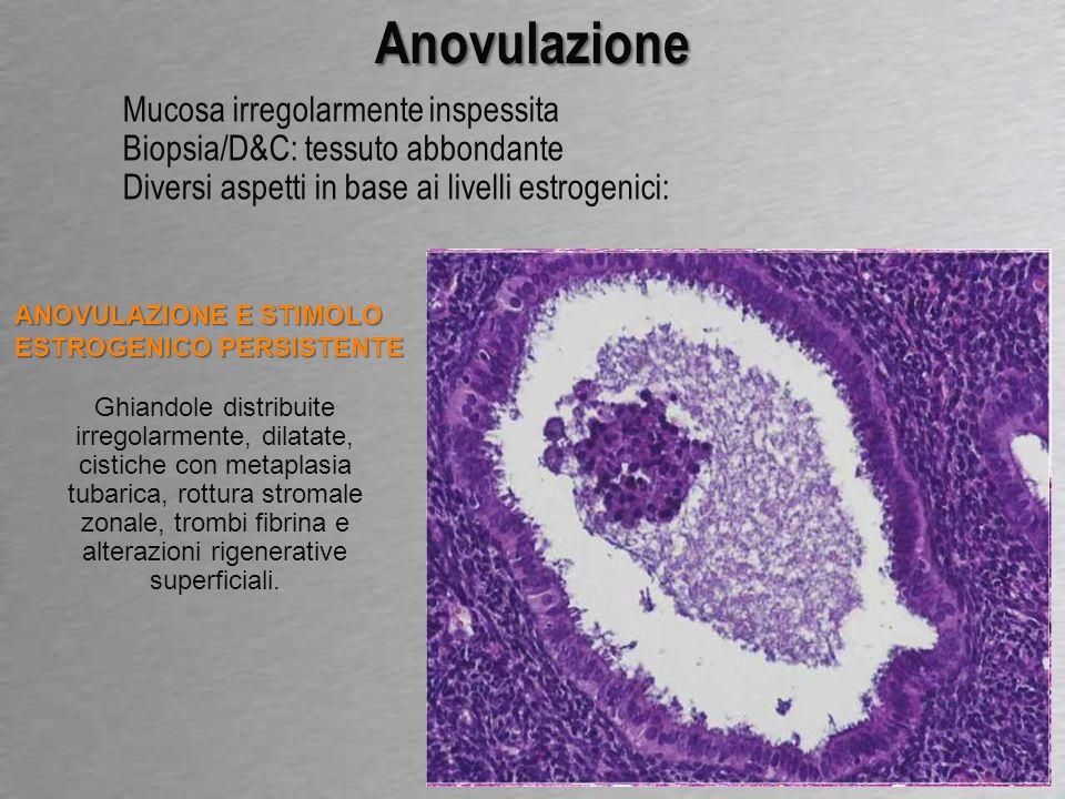 Anovulazione Mucosa irregolarmente inspessita
