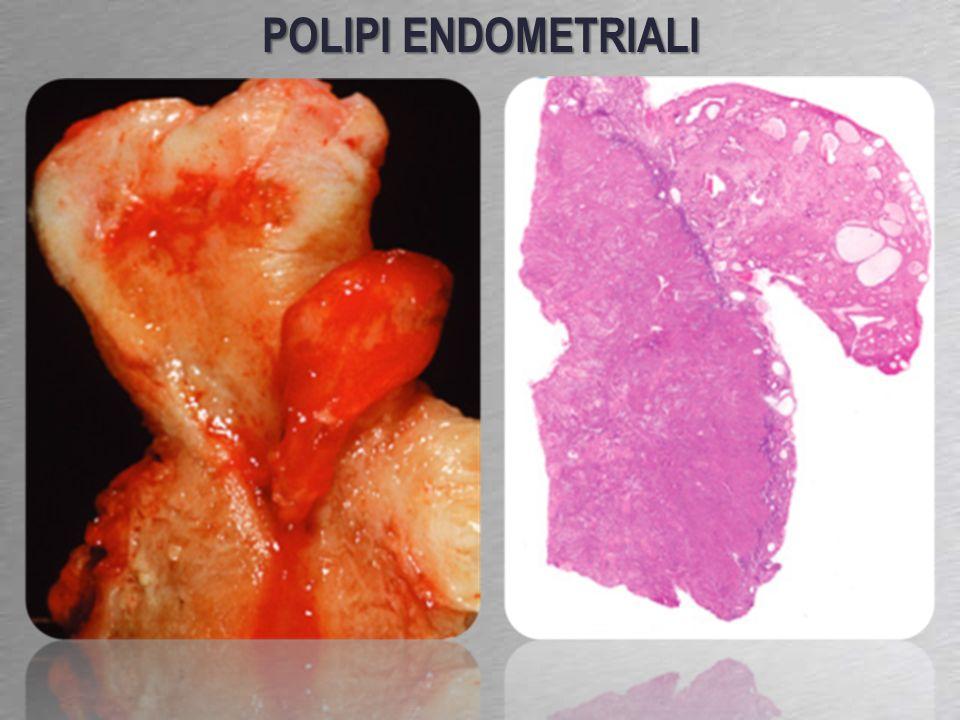 POLIPI ENDOMETRIALI 13-25% delle donne in peri-postmenopausa
