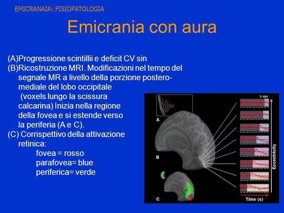 Emicrania con aura Progressione scintillii e deficit CV sin