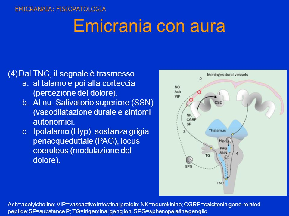 Emicrania con aura Dal TNC, il segnale è trasmesso