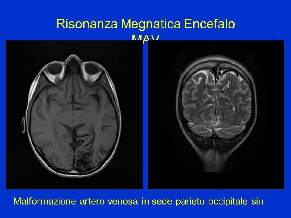 Risonanza Megnatica Encefalo MAV