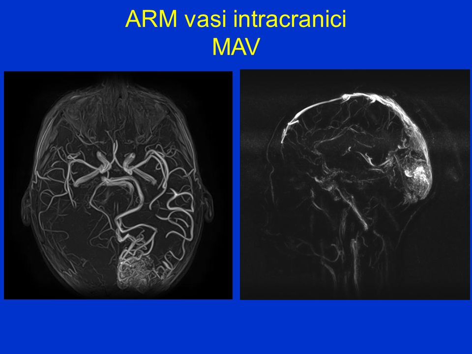 ARM vasi intracranici MAV