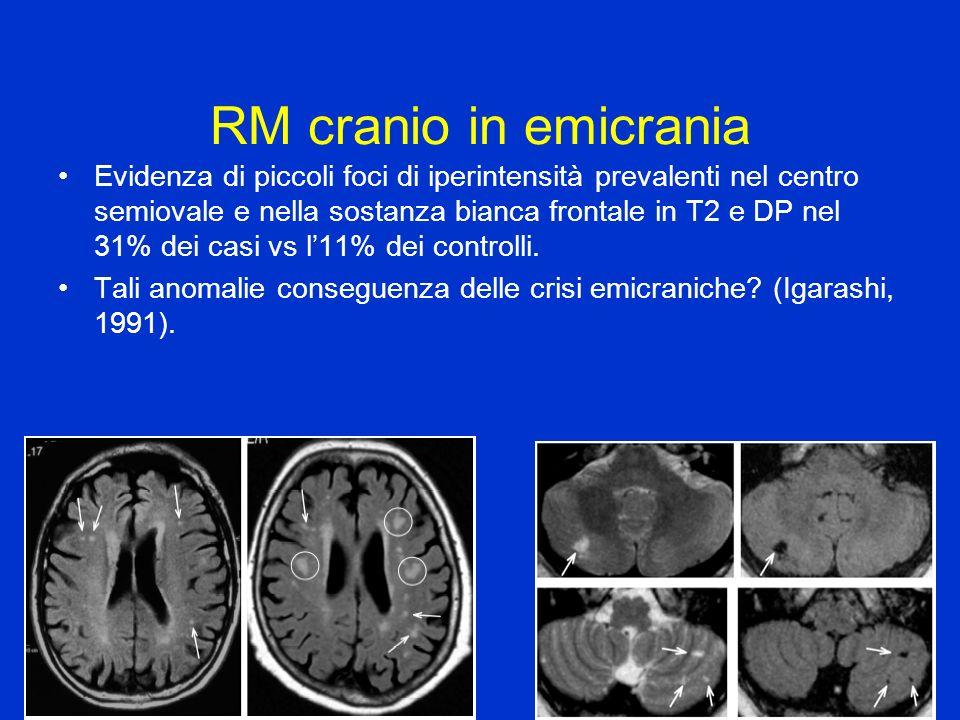 RM cranio in emicrania