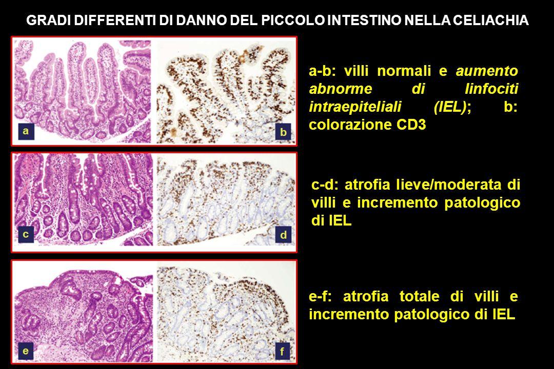 c-d: atrofia lieve/moderata di villi e incremento patologico di IEL