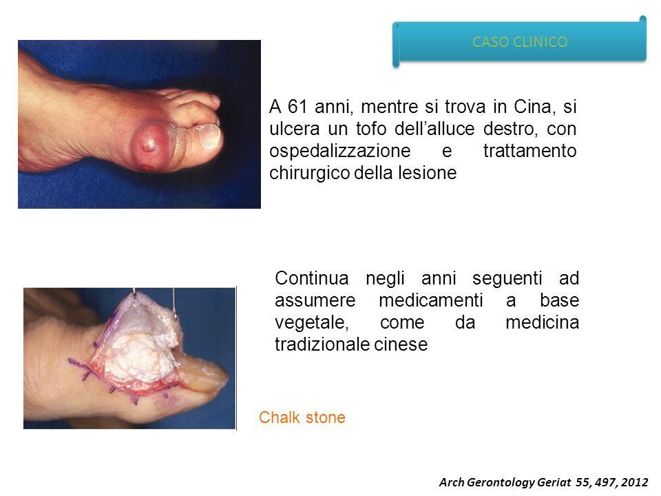 CASO CLINICO A 61 anni, mentre si trova in Cina, si ulcera un tofo dell'alluce destro, con ospedalizzazione e trattamento chirurgico della lesione.