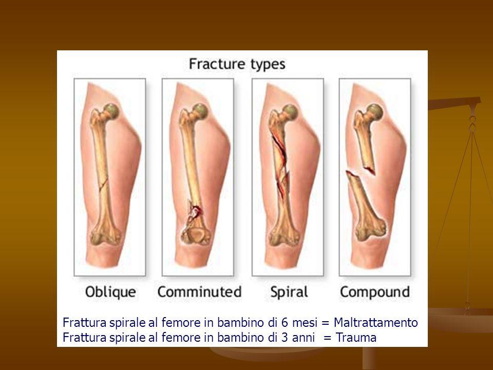 Frattura spirale al femore in bambino di 6 mesi = Maltrattamento