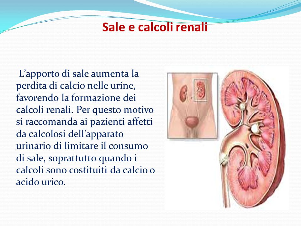Sale e calcoli renali