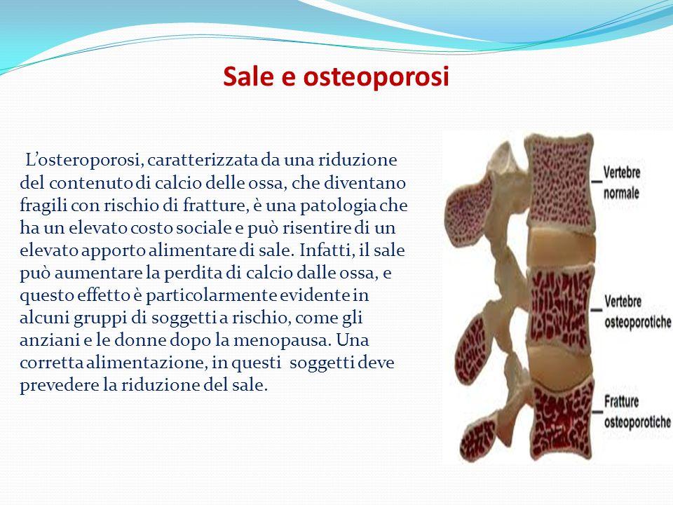 Sale e osteoporosi