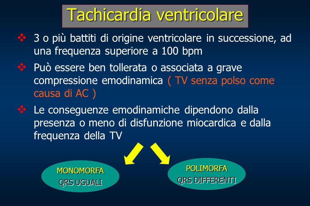 Tachicardia ventricolare