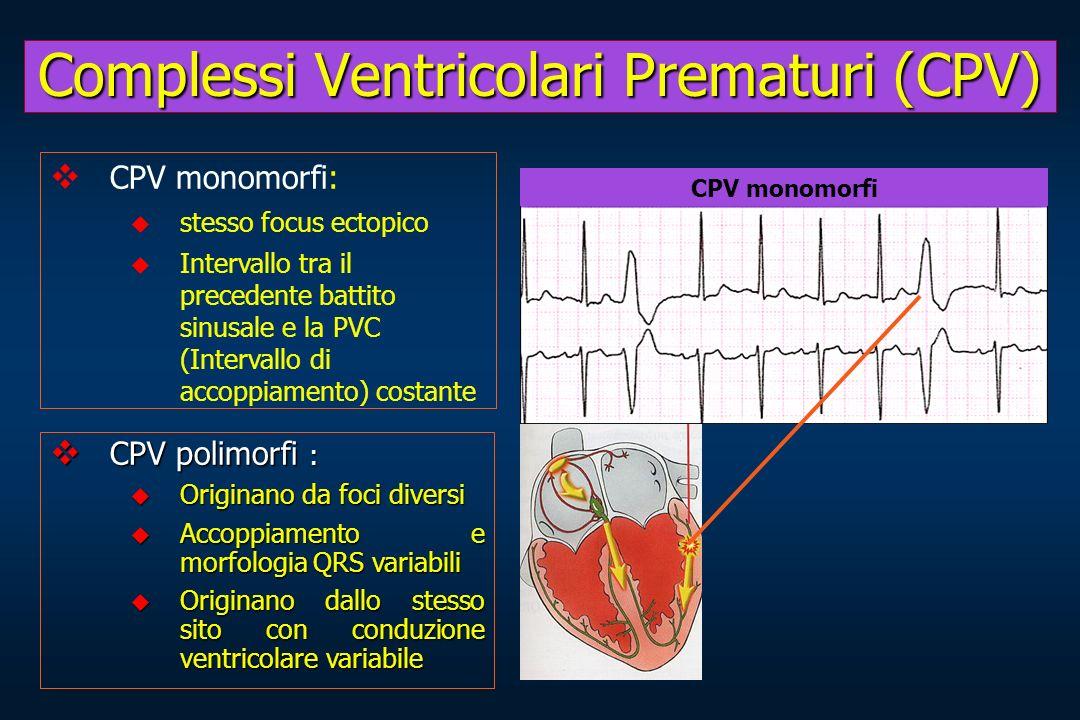 Complessi Ventricolari Prematuri (CPV)