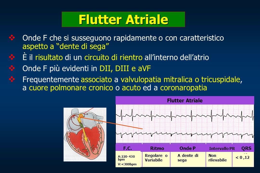Flutter Atriale Onde F che si susseguono rapidamente o con caratteristico aspetto a dente di sega