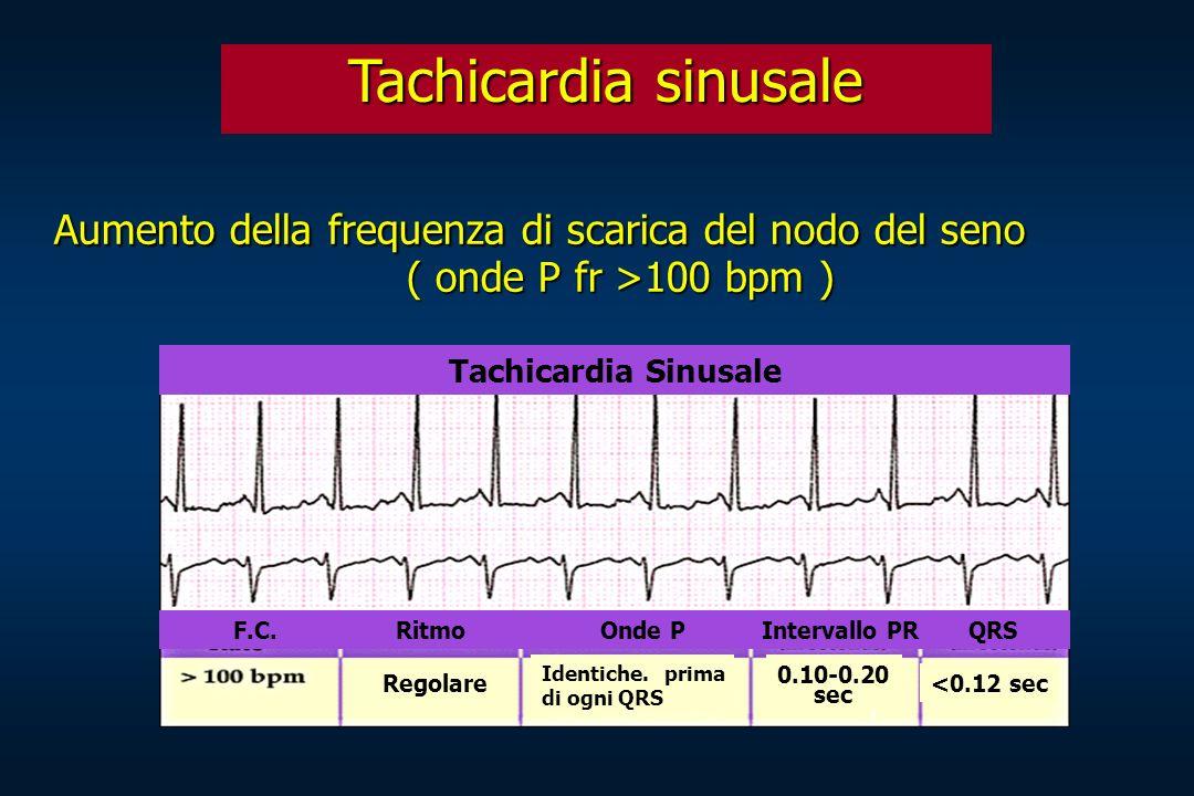 Tachicardia sinusale Aumento della frequenza di scarica del nodo del seno. ( onde P fr >100 bpm ) Tachicardia Sinusale.
