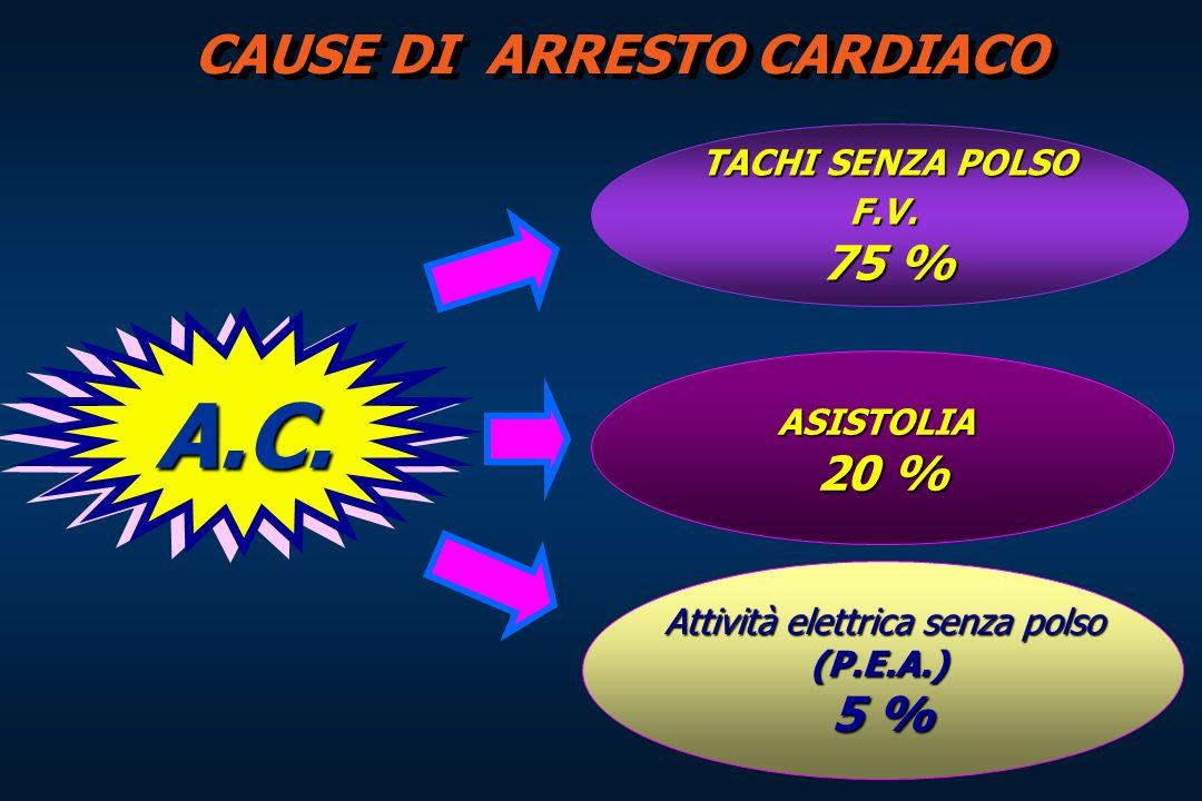 CAUSE DI ARRESTO CARDIACO