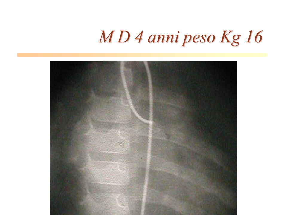 M D 4 anni peso Kg 16