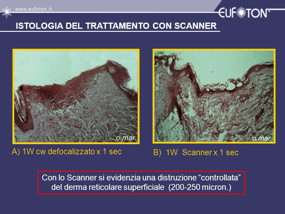 ISTOLOGIA DEL TRATTAMENTO CON SCANNER