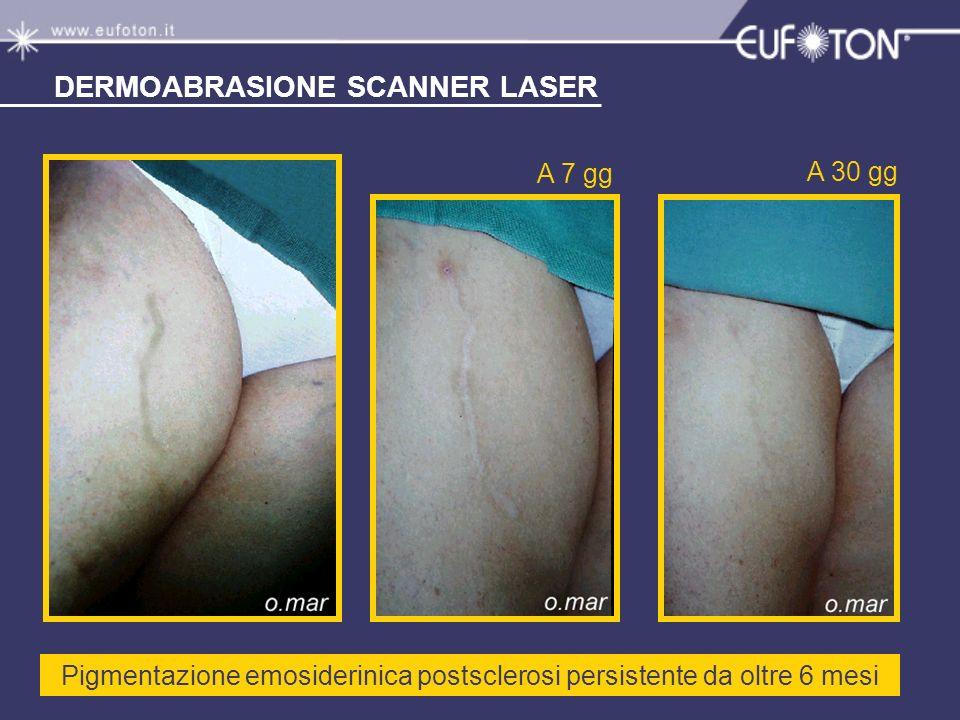 Pigmentazione emosiderinica postsclerosi persistente da oltre 6 mesi