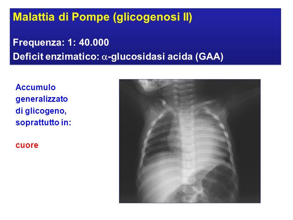 Malattia di Pompe (glicogenosi II)