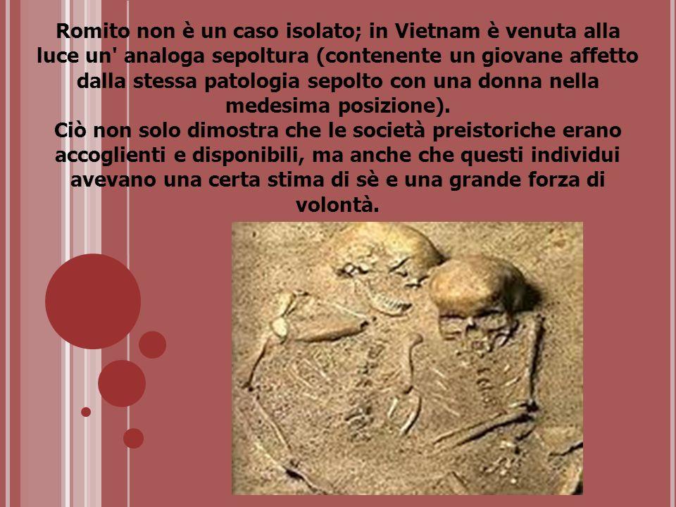 Romito non è un caso isolato; in Vietnam è venuta alla luce un analoga sepoltura (contenente un giovane affetto dalla stessa patologia sepolto con una donna nella medesima posizione).