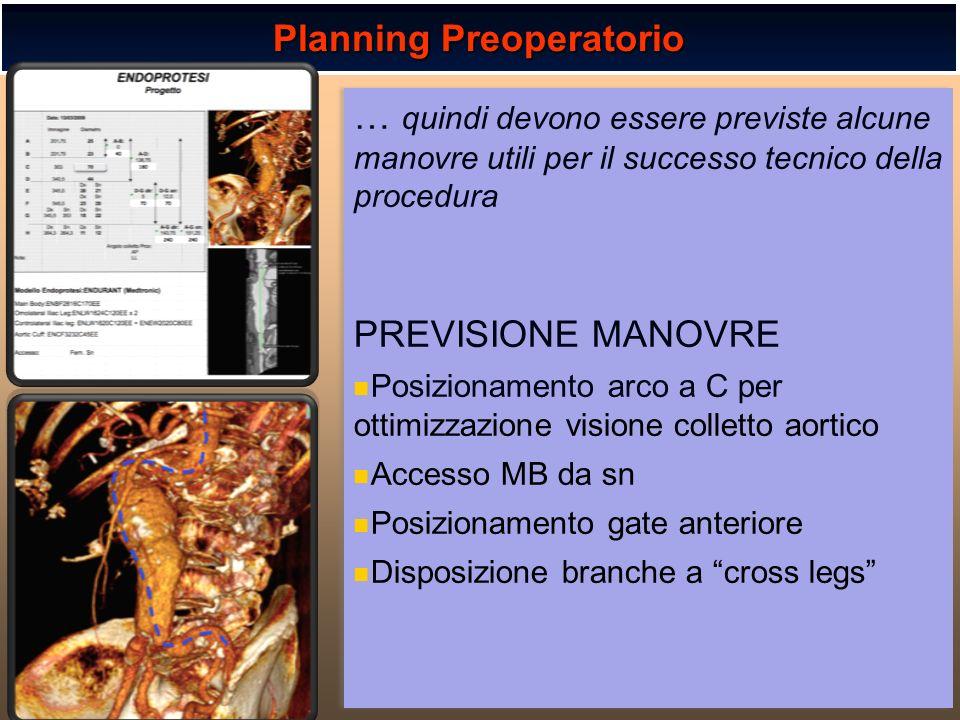 Planning Preoperatorio
