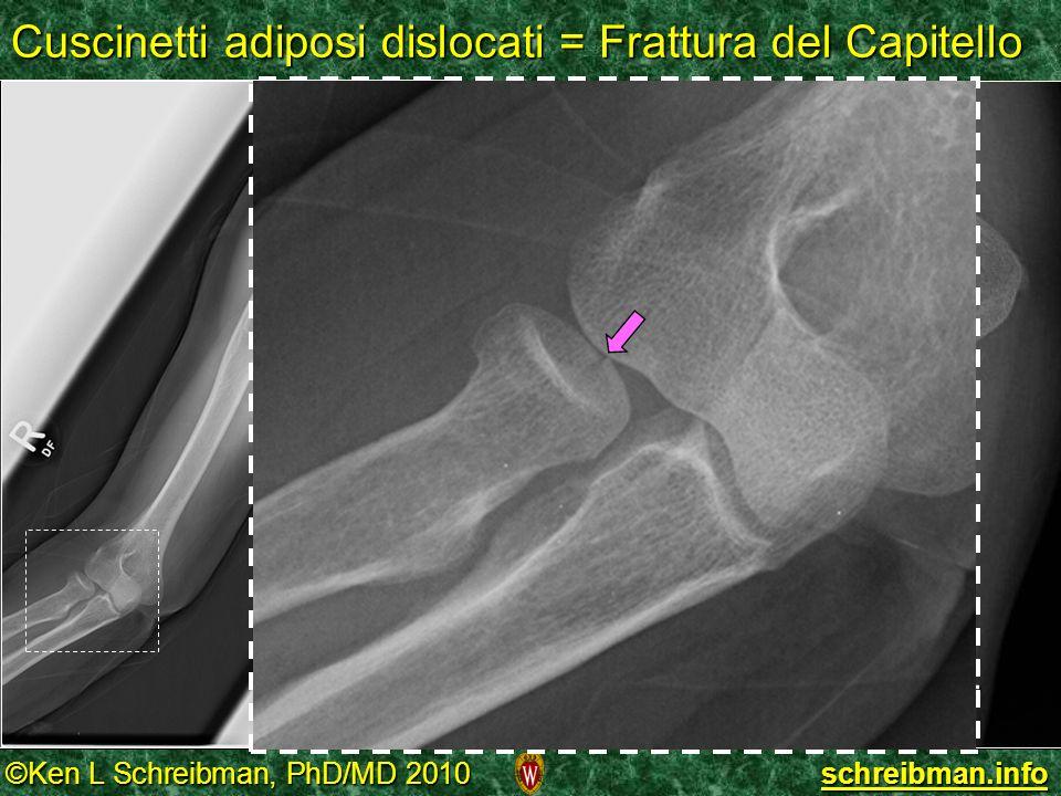 Cuscinetti adiposi dislocati = Frattura del Capitello