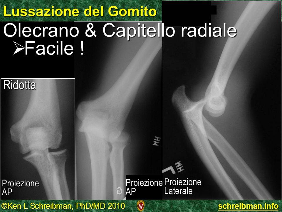 Olecrano & Capitello radiale Facile !