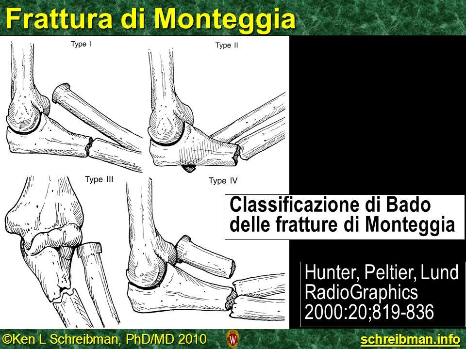 Frattura di Monteggia Classificazione di Bado delle fratture di Monteggia.
