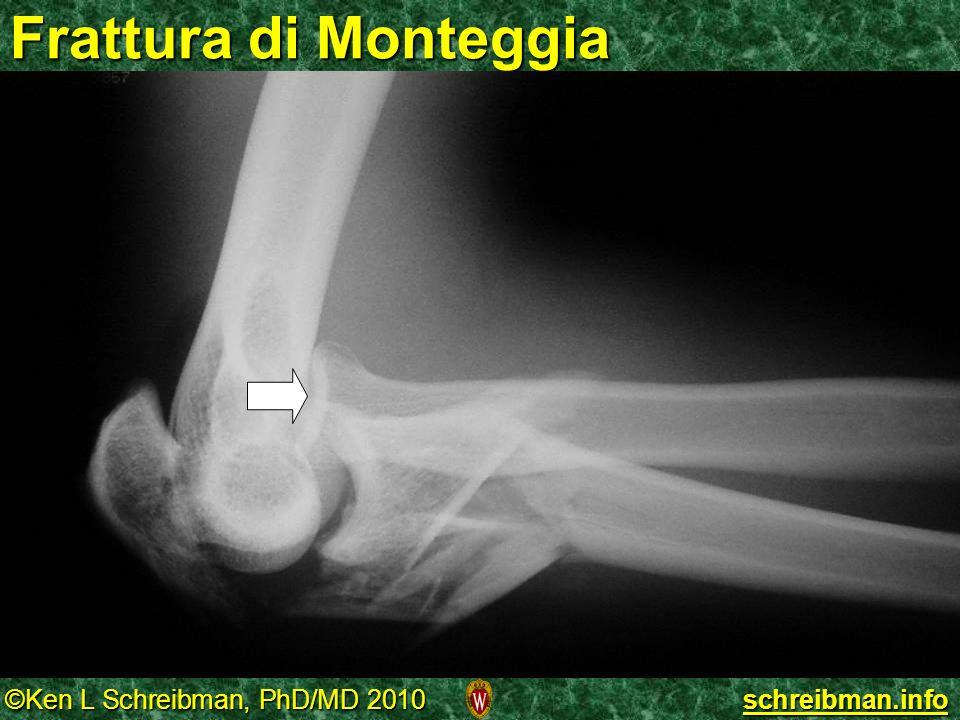 Frattura di Monteggia