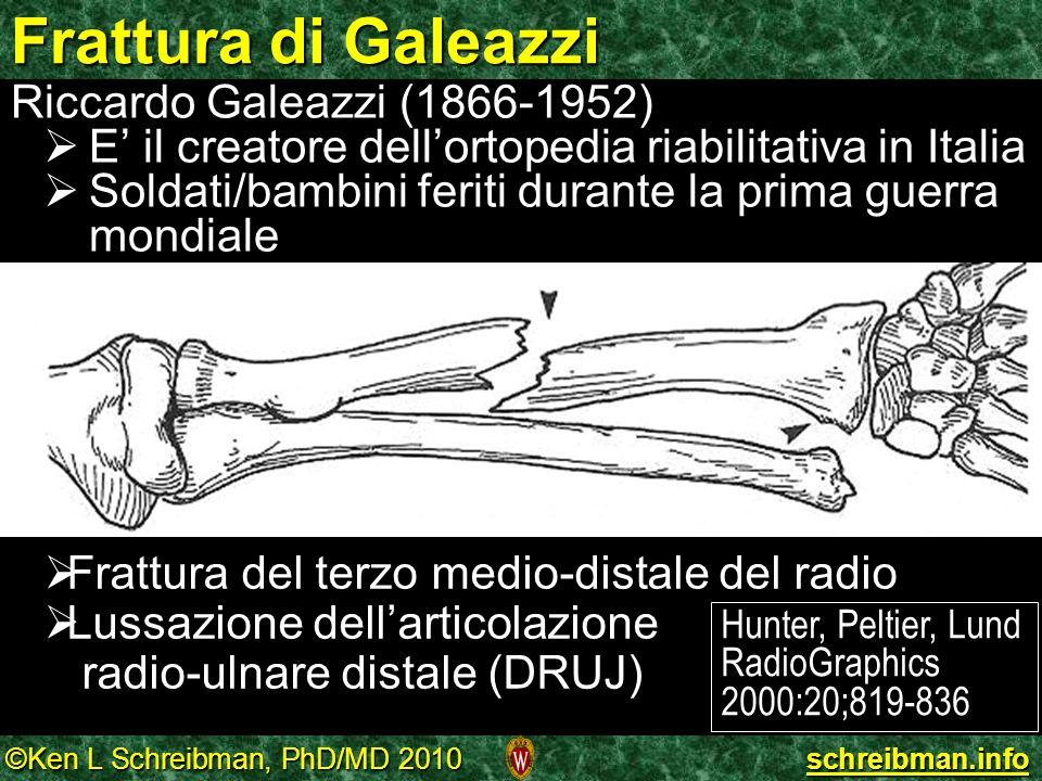Frattura di Galeazzi Riccardo Galeazzi (1866-1952)