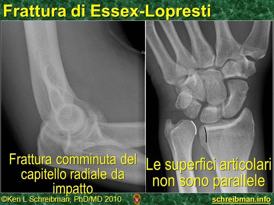 Frattura di Essex-Lopresti