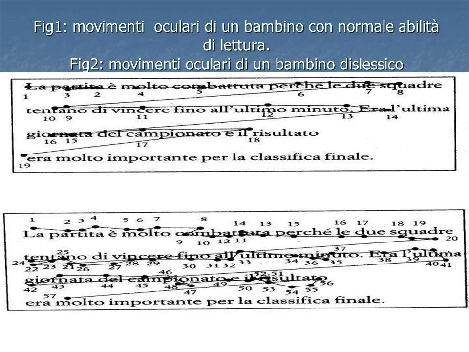 Fig1: movimenti oculari di un bambino con normale abilità di lettura