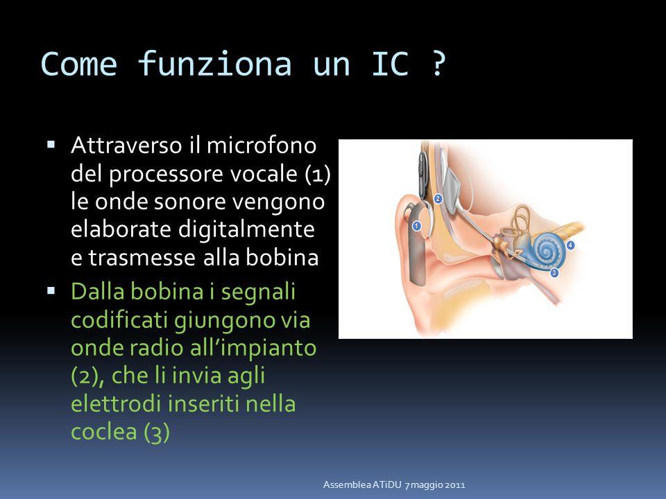 Come funziona un IC Attraverso il microfono del processore vocale (1) le onde sonore vengono elaborate digitalmente e trasmesse alla bobina.