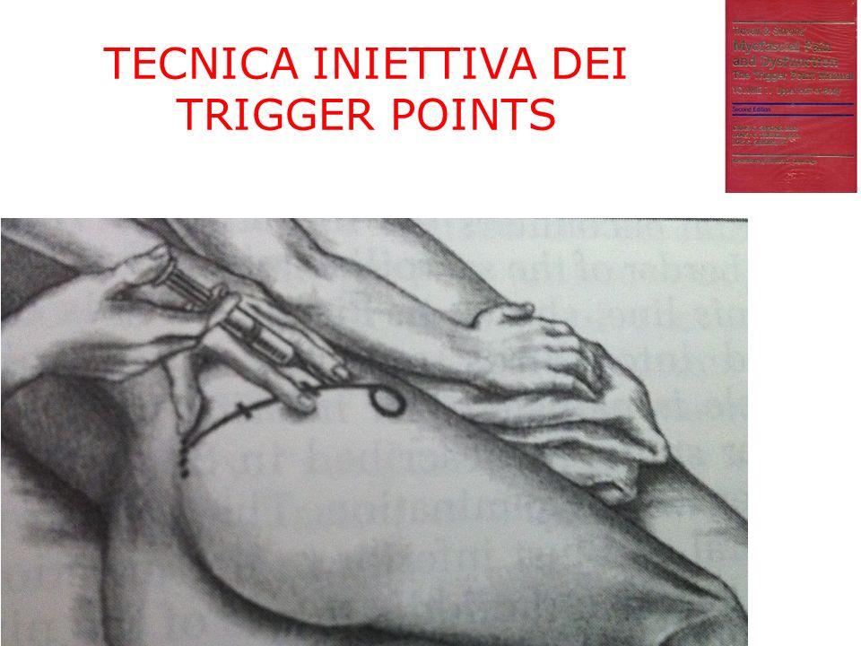TECNICA INIETTIVA DEI TRIGGER POINTS